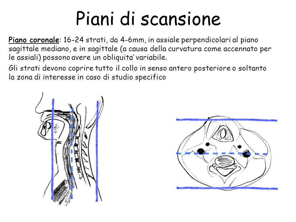 Piani di scansione Piano coronale: 16-24 strati, da 4-6mm, in assiale perpendicolari al piano sagittale mediano, e in sagittale (a causa della curvatu