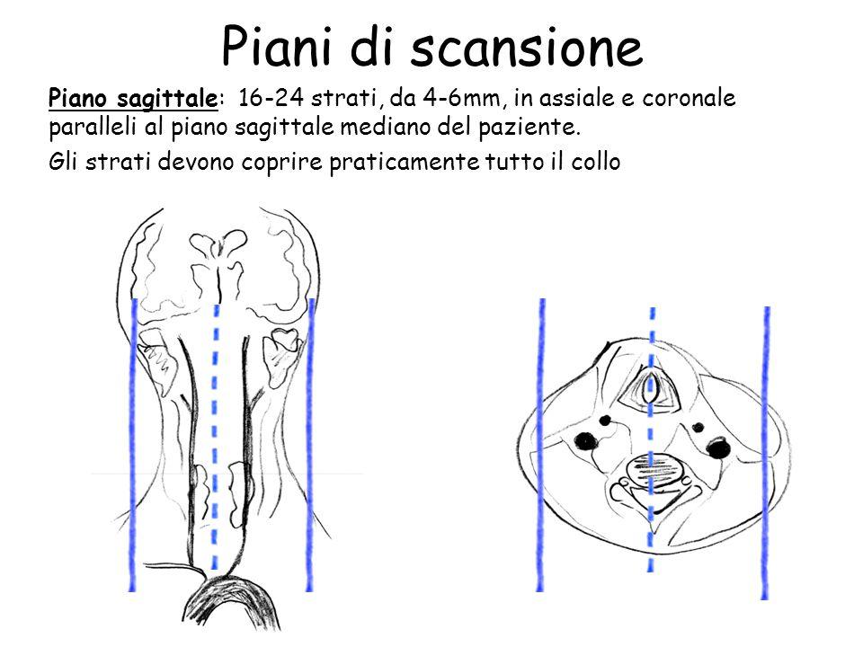 Piani di scansione Piano sagittale: 16-24 strati, da 4-6mm, in assiale e coronale paralleli al piano sagittale mediano del paziente. Gli strati devono