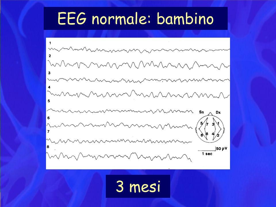 EEG normale: bambino 3 mesi
