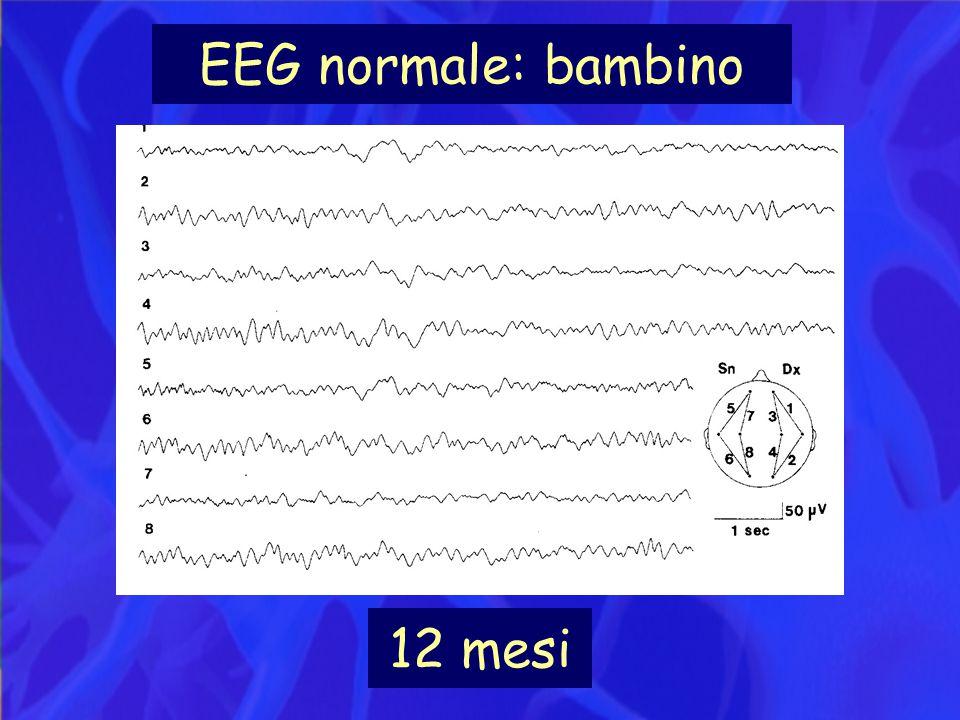 EEG normale: bambino 12 mesi