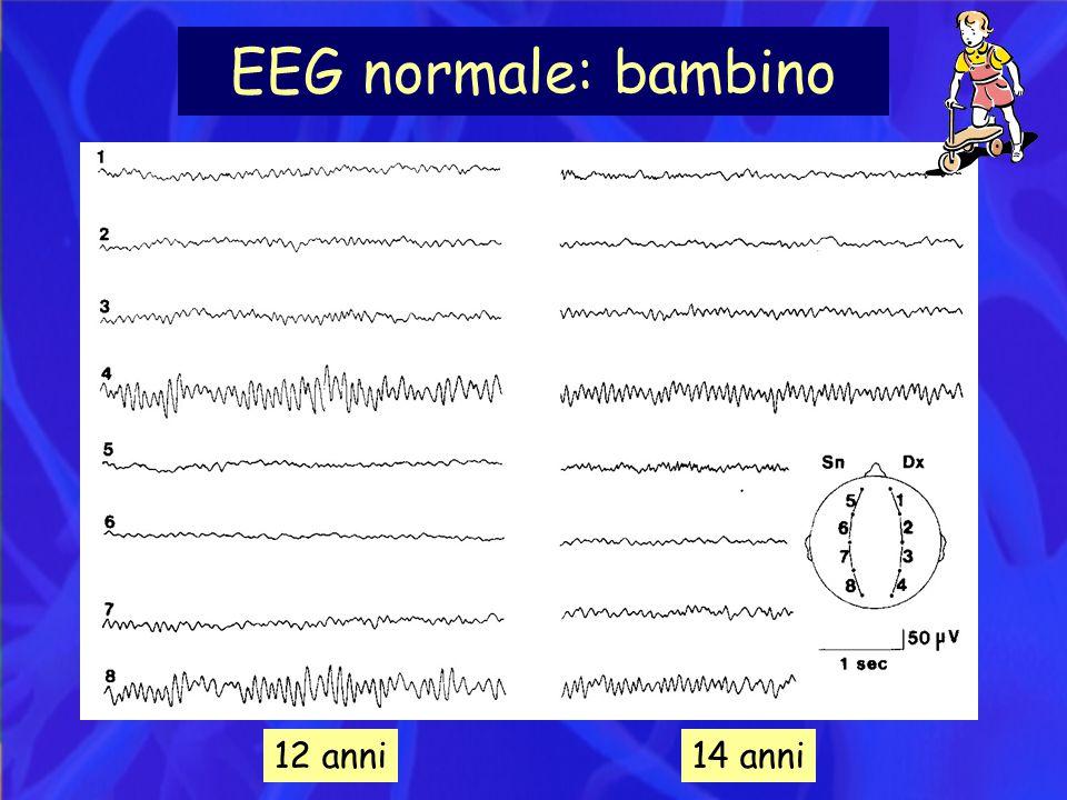 EEG normale: bambino 12 anni14 anni