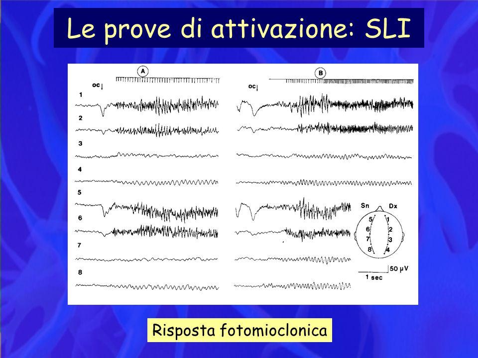 Le prove di attivazione: SLI Risposta fotomioclonica