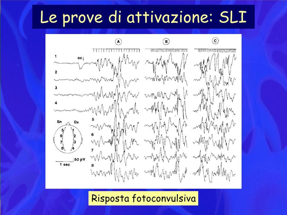 Le prove di attivazione: SLI Risposta fotoconvulsiva