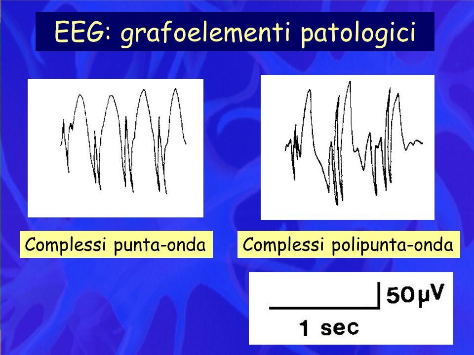 EEG: grafoelementi patologici Complessi punta-ondaComplessi polipunta-onda