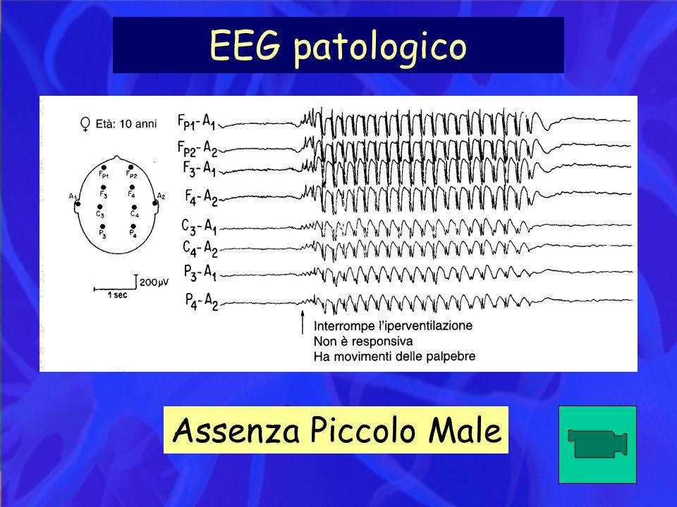 EEG patologico Assenza Piccolo Male
