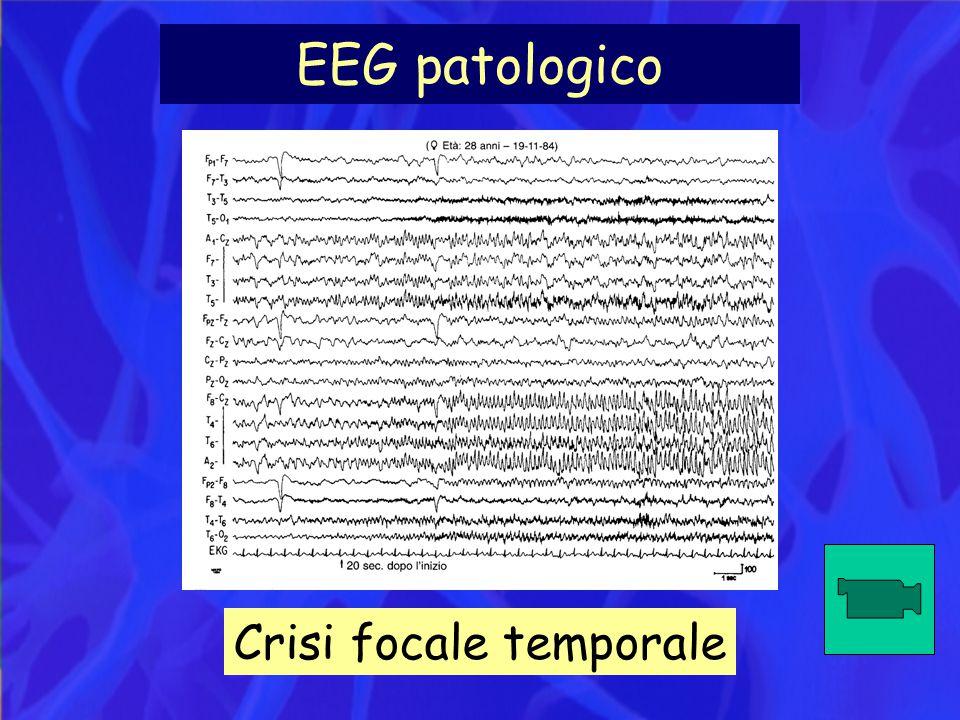EEG patologico Crisi focale temporale