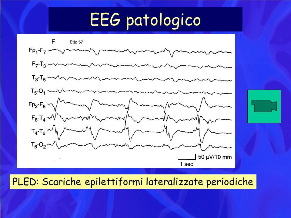 EEG patologico PLED: Scariche epilettiformi lateralizzate periodiche