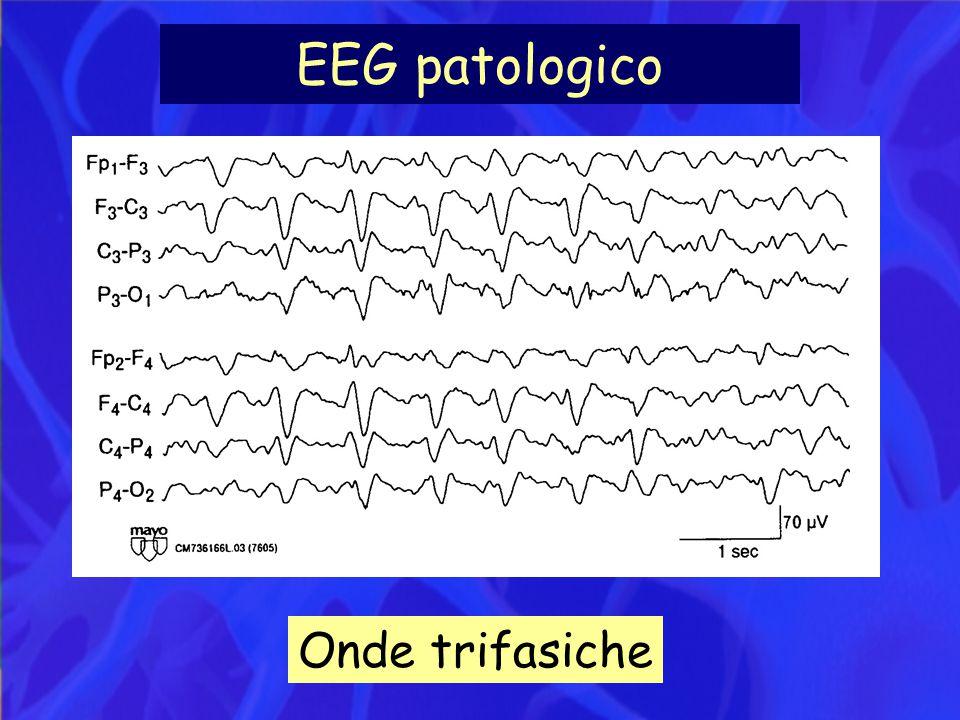 EEG patologico Onde trifasiche