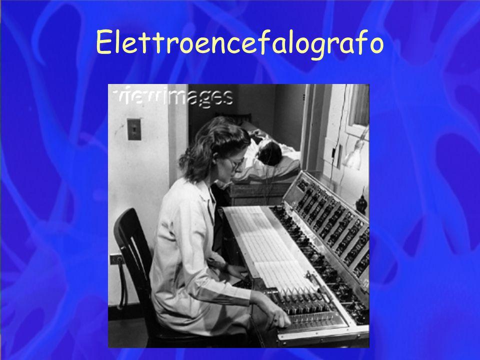 EEG patologico Crisi focale frontale
