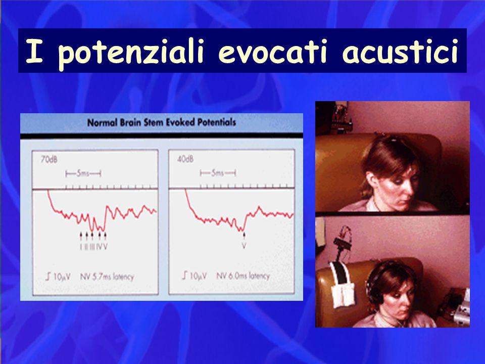 I potenziali evocati acustici