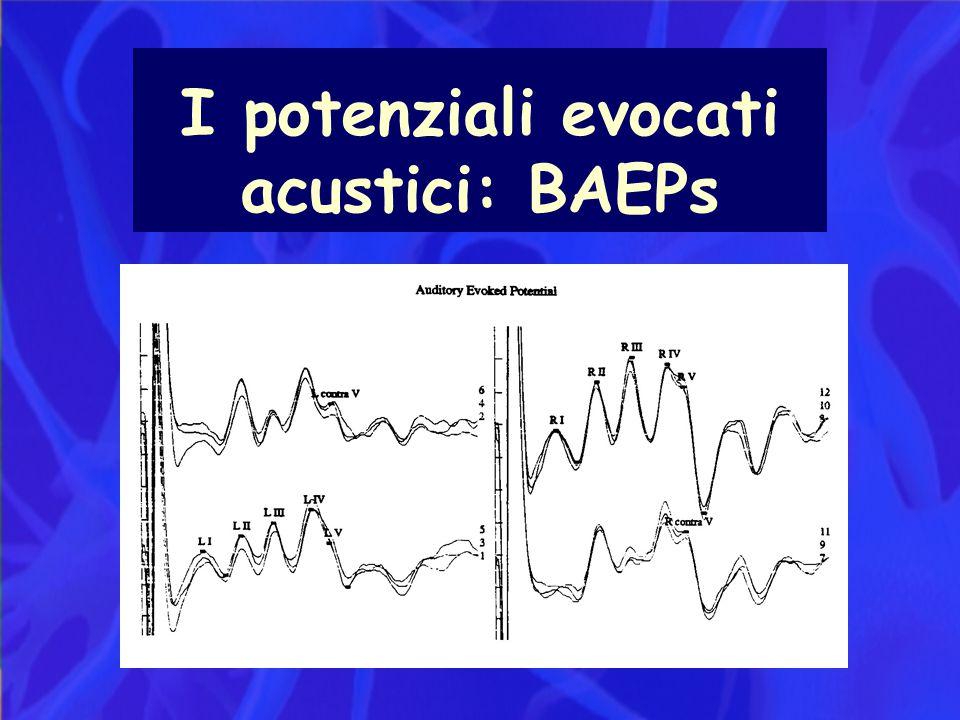 I potenziali evocati acustici: BAEPs