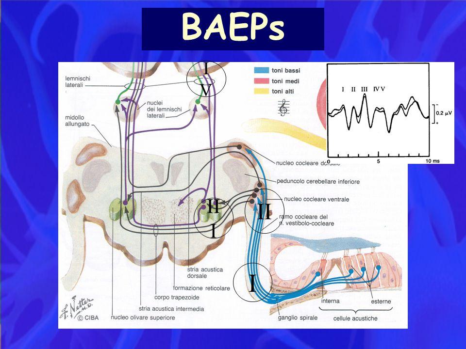 BAEPs I II II I IVIV