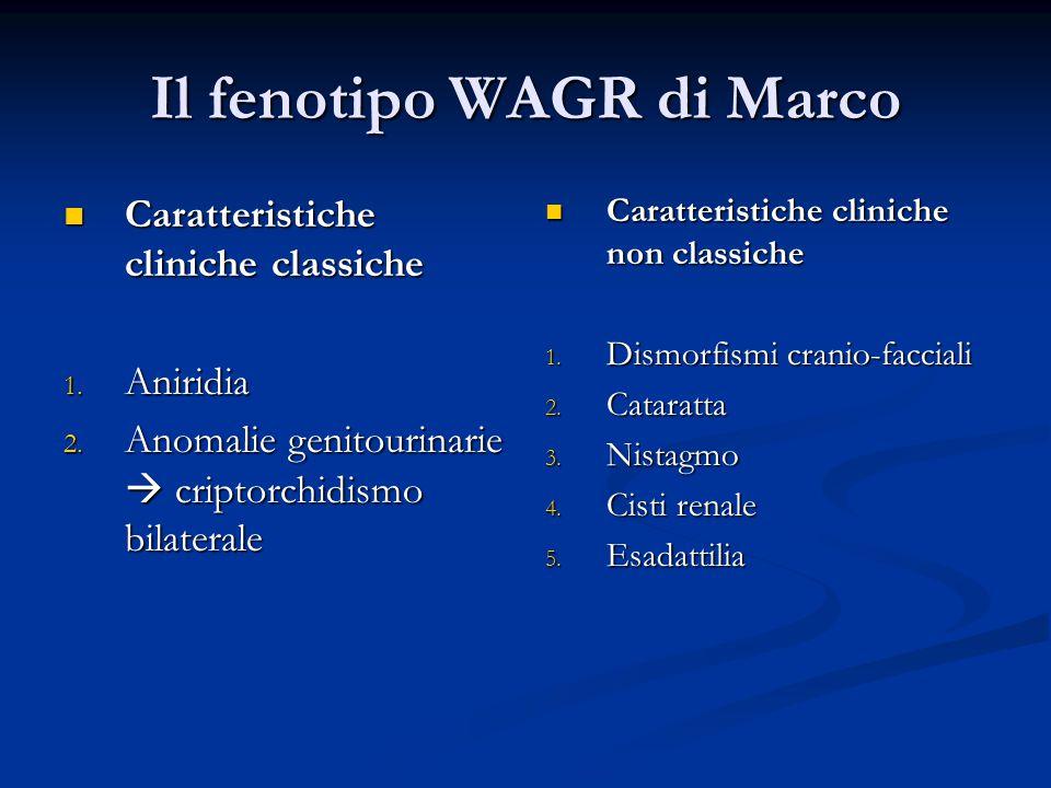 Il fenotipo WAGR di Marco Caratteristiche cliniche classiche Caratteristiche cliniche classiche 1.