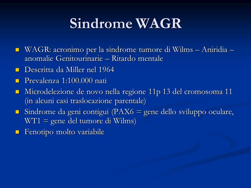 Sindrome WAGR WAGR: acronimo per la sindrome tumore di Wilms – Aniridia – anomalie Genitourinarie – Ritardo mentale WAGR: acronimo per la sindrome tumore di Wilms – Aniridia – anomalie Genitourinarie – Ritardo mentale Descritta da Miller nel 1964 Descritta da Miller nel 1964 Prevalenza 1:100.000 nati Prevalenza 1:100.000 nati Microdelezione de novo nella regione 11p 13 del cromosoma 11 (in alcuni casi traslocazione parentale) Microdelezione de novo nella regione 11p 13 del cromosoma 11 (in alcuni casi traslocazione parentale) Sindrome da geni contigui (PAX6 = gene dello sviluppo oculare, WT1 = gene del tumore di Wilms) Sindrome da geni contigui (PAX6 = gene dello sviluppo oculare, WT1 = gene del tumore di Wilms) Fenotipo molto variabile Fenotipo molto variabile