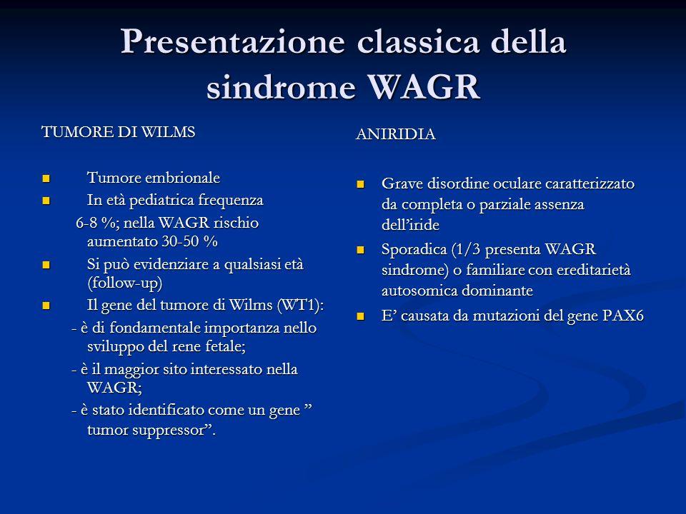 Presentazione classica della sindrome WAGR TUMORE DI WILMS Tumore embrionale Tumore embrionale In età pediatrica frequenza In età pediatrica frequenza 6-8 %; nella WAGR rischio aumentato 30-50 % 6-8 %; nella WAGR rischio aumentato 30-50 % Si può evidenziare a qualsiasi età (follow-up) Si può evidenziare a qualsiasi età (follow-up) Il gene del tumore di Wilms (WT1): Il gene del tumore di Wilms (WT1): - è di fondamentale importanza nello sviluppo del rene fetale; - è di fondamentale importanza nello sviluppo del rene fetale; - è il maggior sito interessato nella WAGR; - è il maggior sito interessato nella WAGR; - è stato identificato come un gene tumor suppressor .