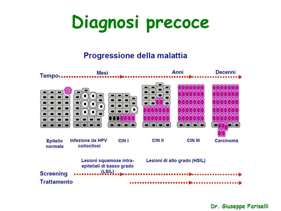 Diagnosi precoce Dr. Giuseppe Fariselli