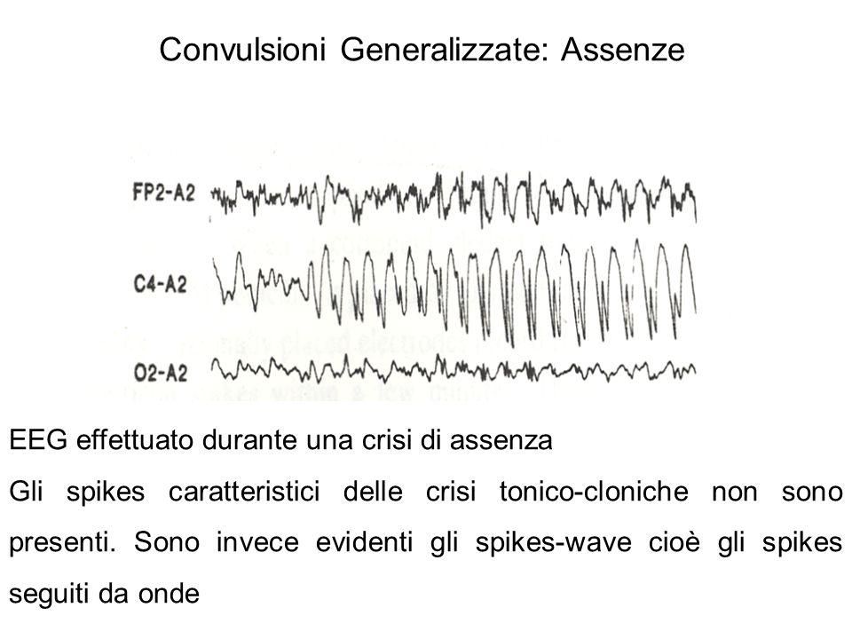 Convulsioni Generalizzate: Assenze EEG effettuato durante una crisi di assenza Gli spikes caratteristici delle crisi tonico-cloniche non sono presenti.