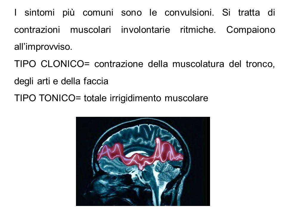 I sintomi più comuni sono le convulsioni. Si tratta di contrazioni muscolari involontarie ritmiche. Compaiono all'improvviso. TIPO CLONICO= contrazion