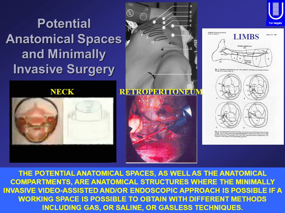 PROPERITONEUMRETROPERITONEUM Tor Vergata Potential Anatomical Spaces and Minimally Invasive Surgery