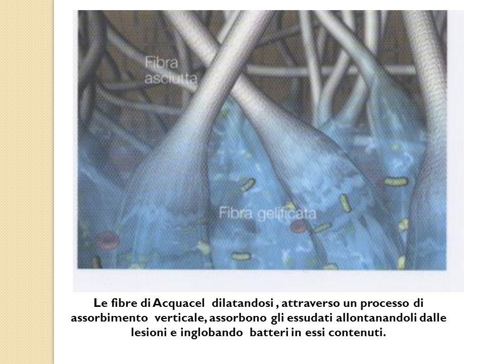 Le fibre di Acquacel dilatandosi, attraverso un processo di assorbimento verticale, assorbono gli essudati allontanandoli dalle lesioni e inglobando batteri in essi contenuti.
