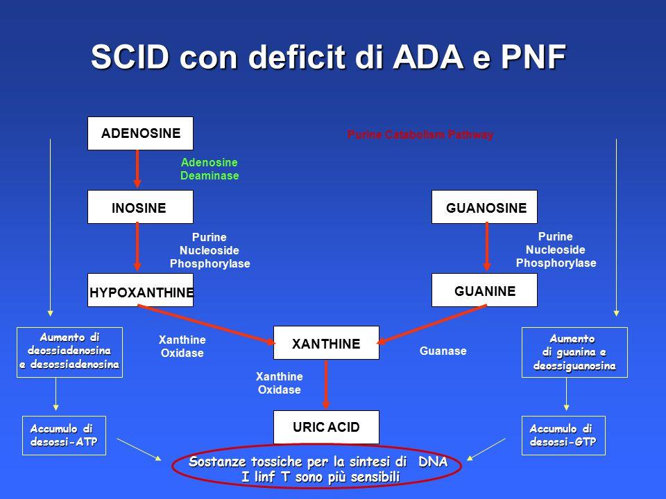 SCID con deficit di ADA e PNF ADENOSINE INOSINE HYPOXANTHINE XANTHINE URIC ACID GUANOSINE GUANINE Purine Catabolism Pathway Adenosine Deaminase Purine