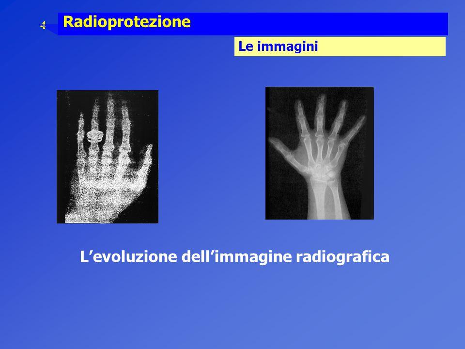 4 Radioprotezione Le immagini L'evoluzione dell'immagine radiografica