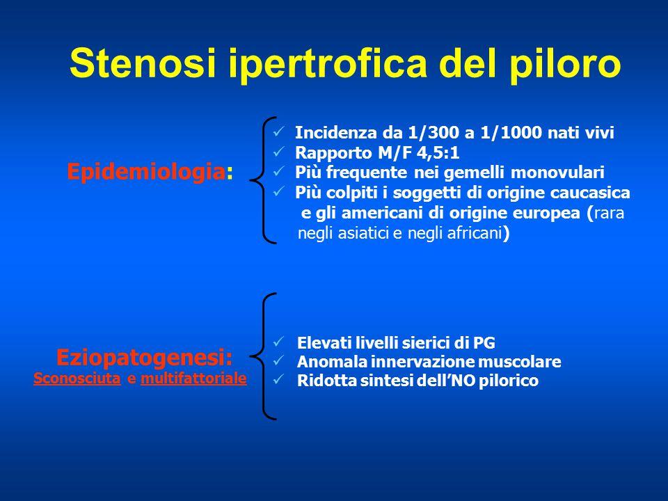 Stenosi ipertrofica del piloro Incidenza da 1/300 a 1/1000 nati vivi Rapporto M/F 4,5:1 Più frequente nei gemelli monovulari Più colpiti i soggetti di