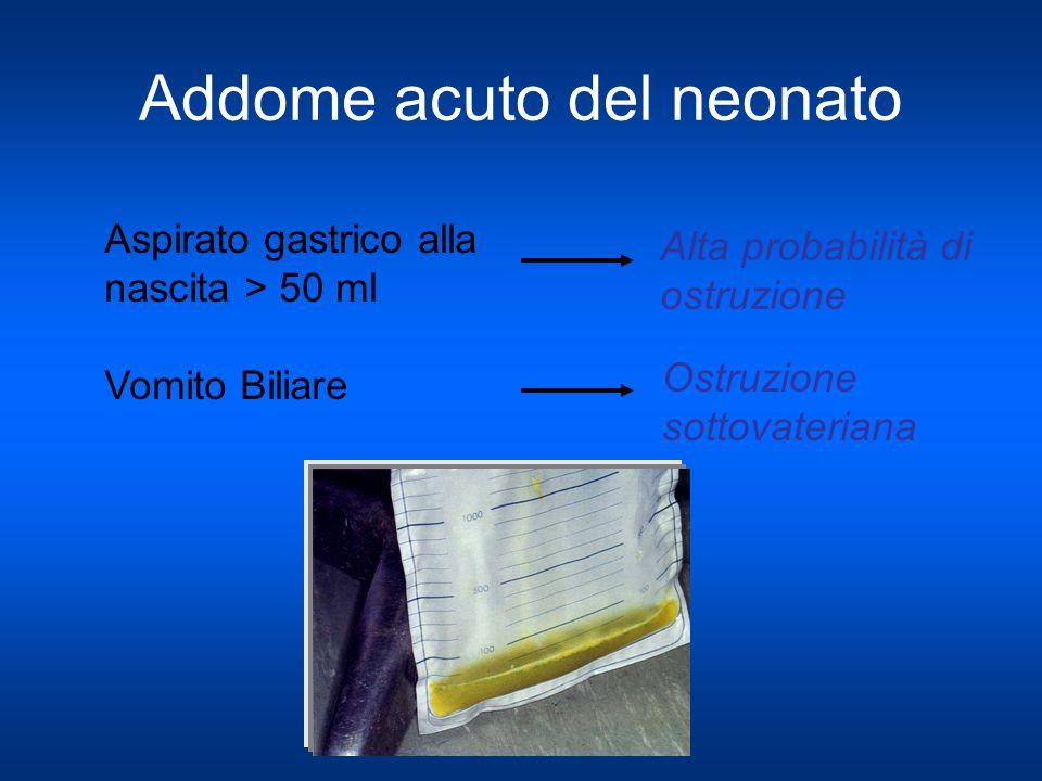 Addome acuto del neonato Aspirato gastrico alla nascita > 50 ml Vomito Biliare Alta probabilità di ostruzione Ostruzione sottovateriana
