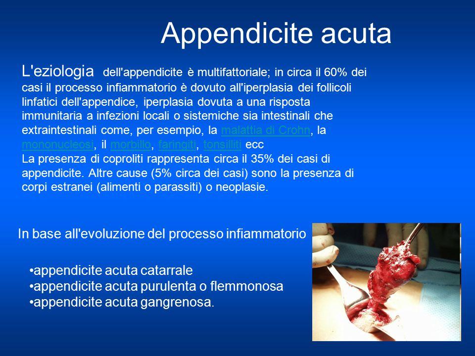 Appendicite acuta appendicite acuta catarrale appendicite acuta purulenta o flemmonosa appendicite acuta gangrenosa. In base all'evoluzione del proces