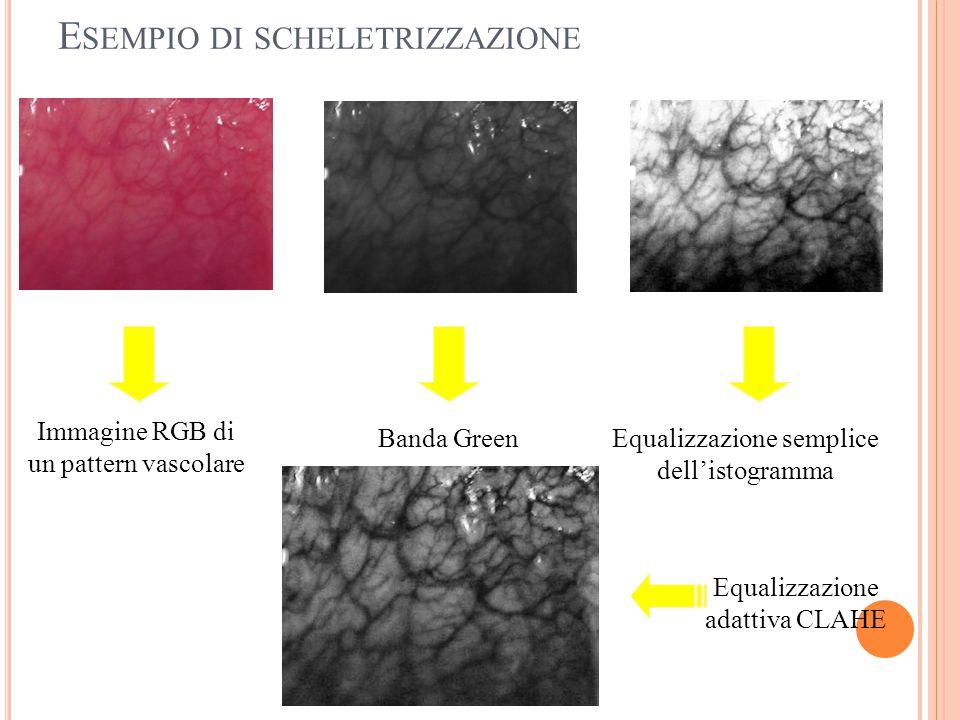 E SEMPIO DI SCHELETRIZZAZIONE Banda GreenEqualizzazione semplice dell'istogramma Immagine RGB di un pattern vascolare Equalizzazione adattiva CLAHE