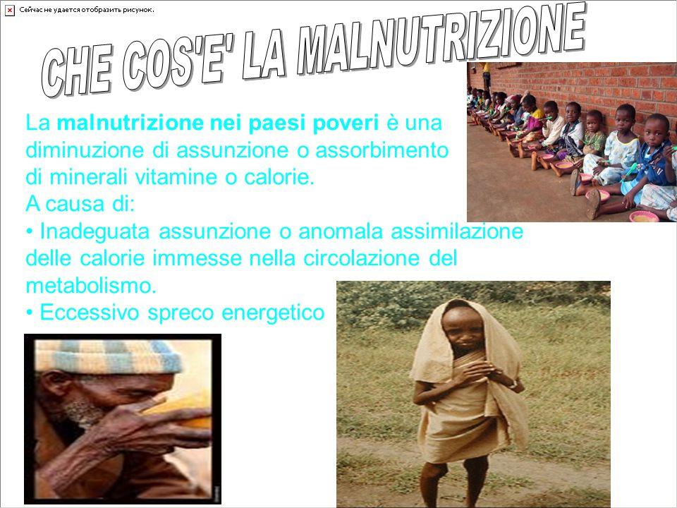 La malnutrizione nei paesi poveri è una diminuzione di assunzione o assorbimento di minerali vitamine o calorie. A causa di: Inadeguata assunzione o a