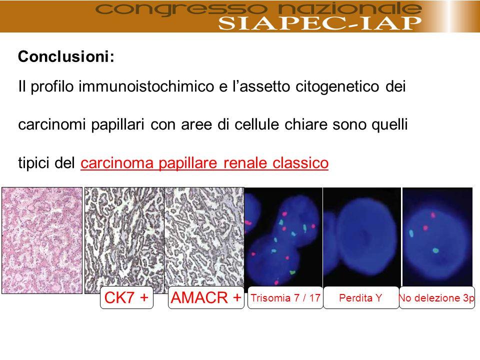 Il profilo immunoistochimico e l'assetto citogenetico dei carcinomi papillari con aree di cellule chiare sono quelli tipici del carcinoma papillare re
