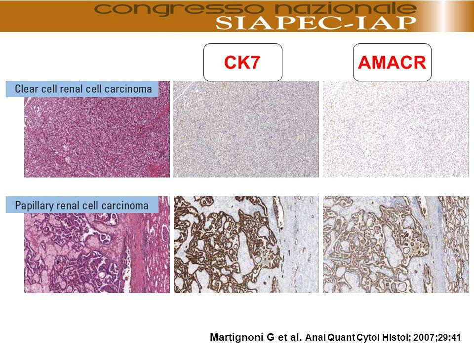 CK7AMACR Martignoni G et al. Anal Quant Cytol Histol; 2007;29:41
