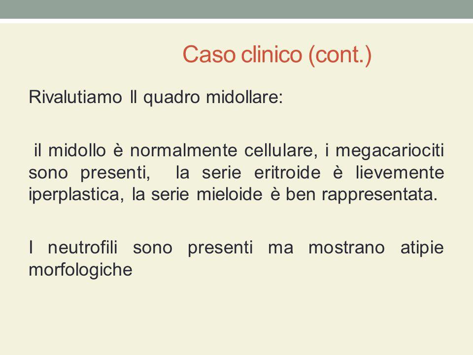 Caso clinico (cont.) Rivalutiamo ll quadro midollare: il midollo è normalmente cellulare, i megacariociti sono presenti, la serie eritroide è lievemen