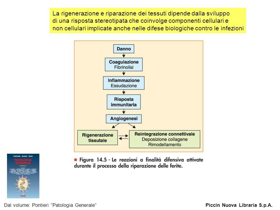 """Figura 14.5 - Le reazioni a finalità difensiva attivate durante il processo della riparazione delle ferite. Dal volume: Pontieri """"Patologia Generale""""P"""