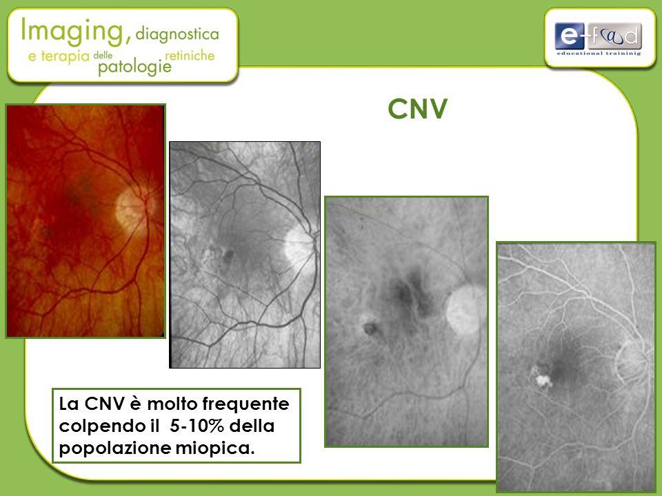 CNV La CNV è molto frequente colpendo il 5-10% della popolazione miopica.