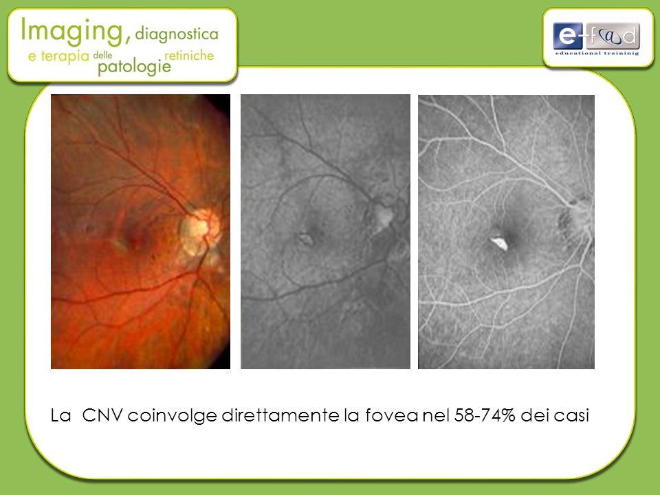 La CNV coinvolge direttamente la fovea nel 58-74% dei casi