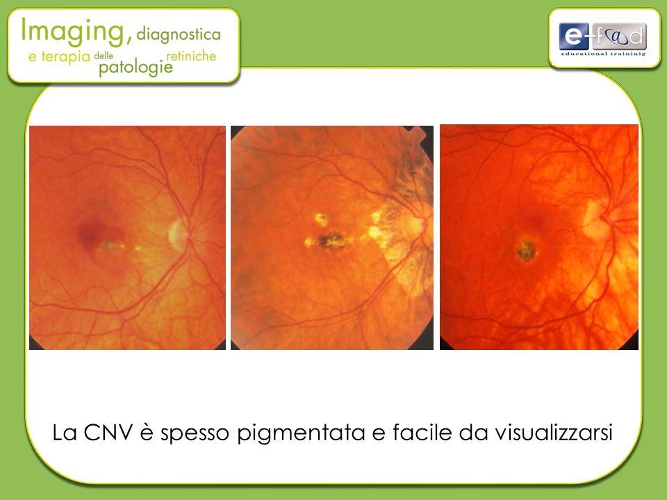 La CNV è spesso pigmentata e facile da visualizzarsi