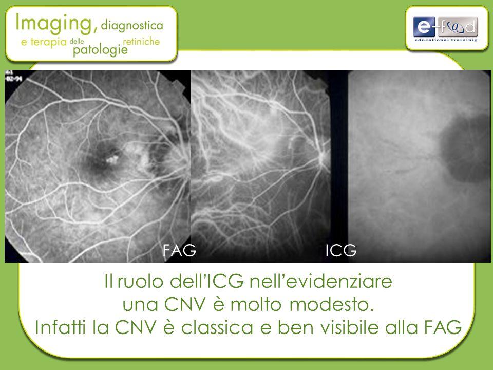 Il ruolo dell'ICG nell'evidenziare una CNV è molto modesto. Infatti la CNV è classica e ben visibile alla FAG FAGICG