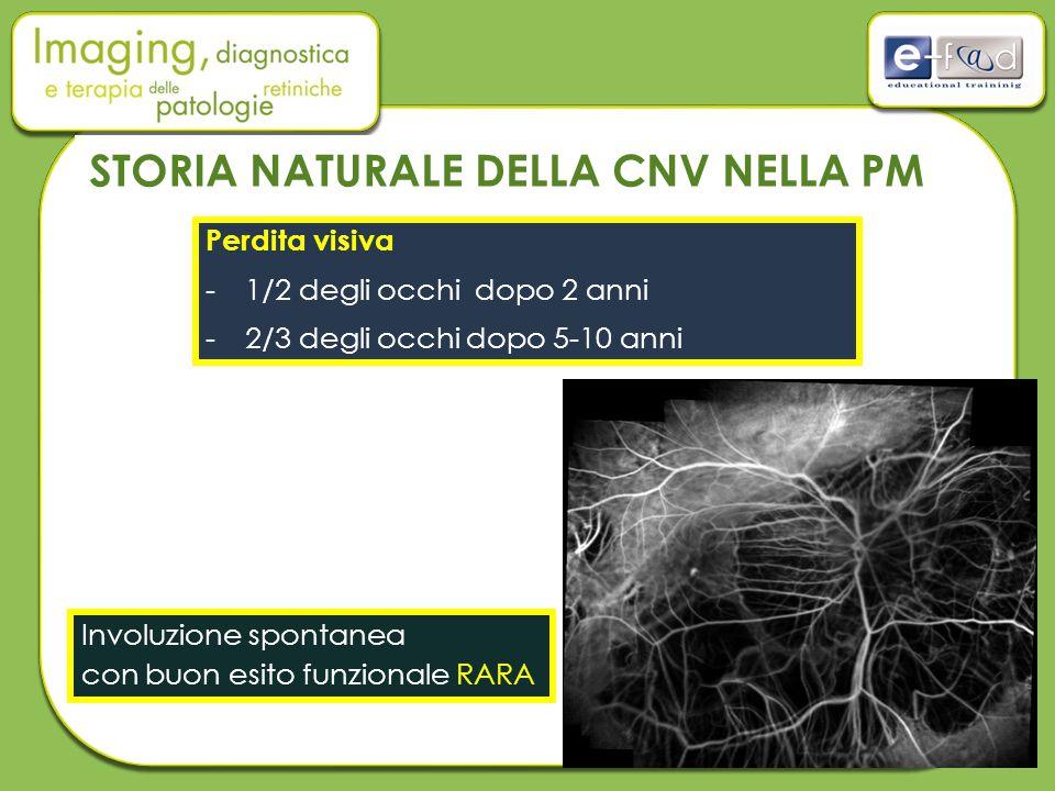 STORIA NATURALE DELLA CNV NELLA PM Perdita visiva -1/2 degli occhi dopo 2 anni -2/3 degli occhi dopo 5-10 anni Involuzione spontanea con buon esito funzionale RARA