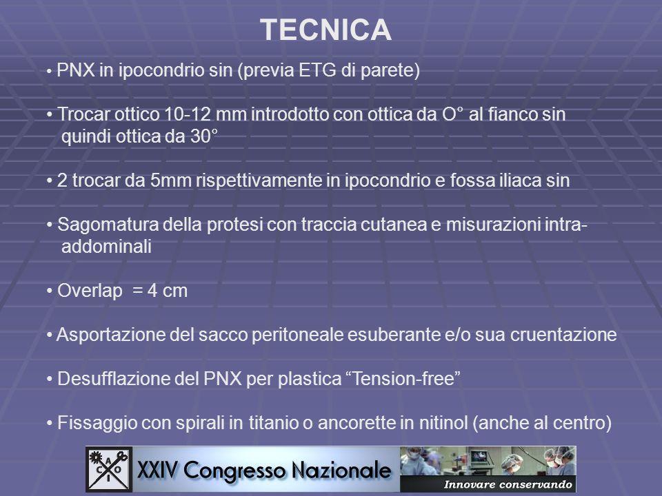 TECNICA PNX in ipocondrio sin (previa ETG di parete) Trocar ottico 10-12 mm introdotto con ottica da O° al fianco sin quindi ottica da 30° 2 trocar da