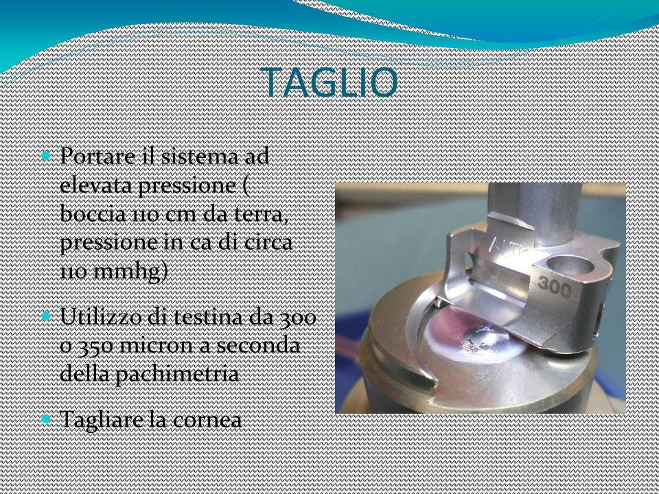 TAGLIO Portare il sistema ad elevata pressione ( boccia 110 cm da terra, pressione in ca di circa 110 mmhg) Utilizzo di testina da 300 o 350 micron a seconda della pachimetria Tagliare la cornea