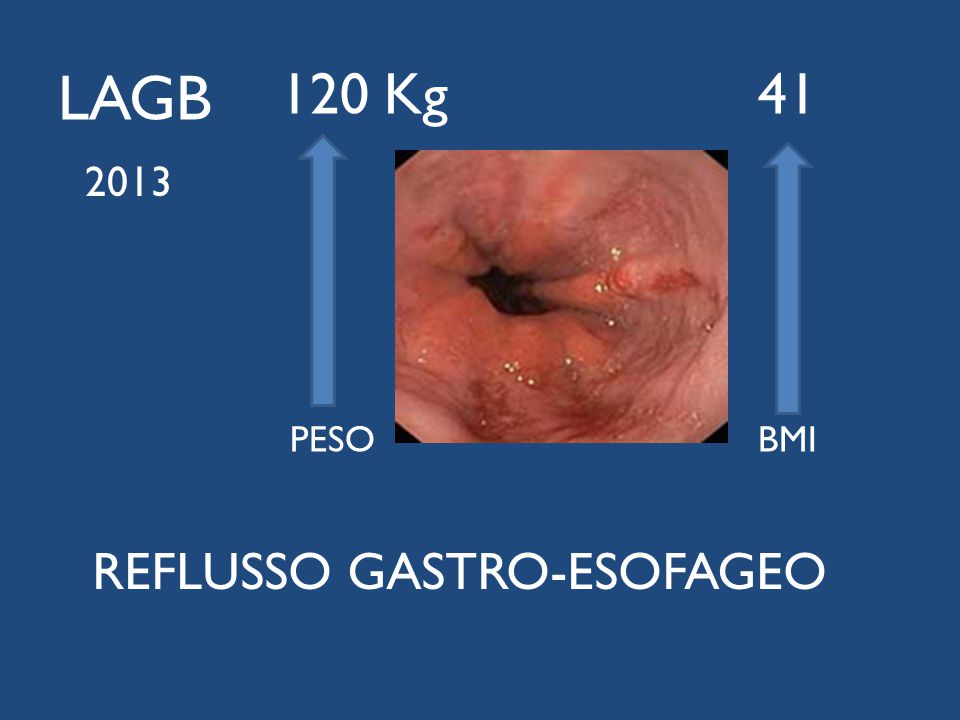 120 Kg 41 PESO BMI LAGB 2013 REFLUSSO GASTRO-ESOFAGEO