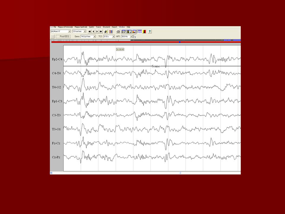 IL SONNO NON REM Questa fase è suddivisa in 4 stadi, definiti da un determinato pattern EEG.