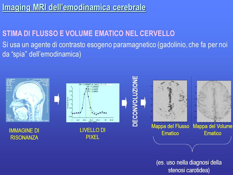 24 Imaging MRI dell'emodinamica cerebrale Si usa un agente di contrasto esogeno paramagnetico (gadolinio, che fa per noi da spia dell'emodinamica) STIMA DI FLUSSO E VOLUME EMATICO NEL CERVELLO DECONVOLUZIONE Mappa del Flusso Ematico Mappa del Volume Ematico IMMAGINE DI RISONANZA LIVELLO DI PIXEL (es.