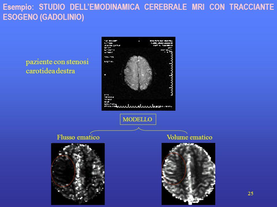 25 Volume ematicoFlusso ematico paziente con stenosi carotidea destra Esempio: STUDIO DELL'EMODINAMICA CEREBRALE MRI CON TRACCIANTE ESOGENO (GADOLINIO) MODELLO