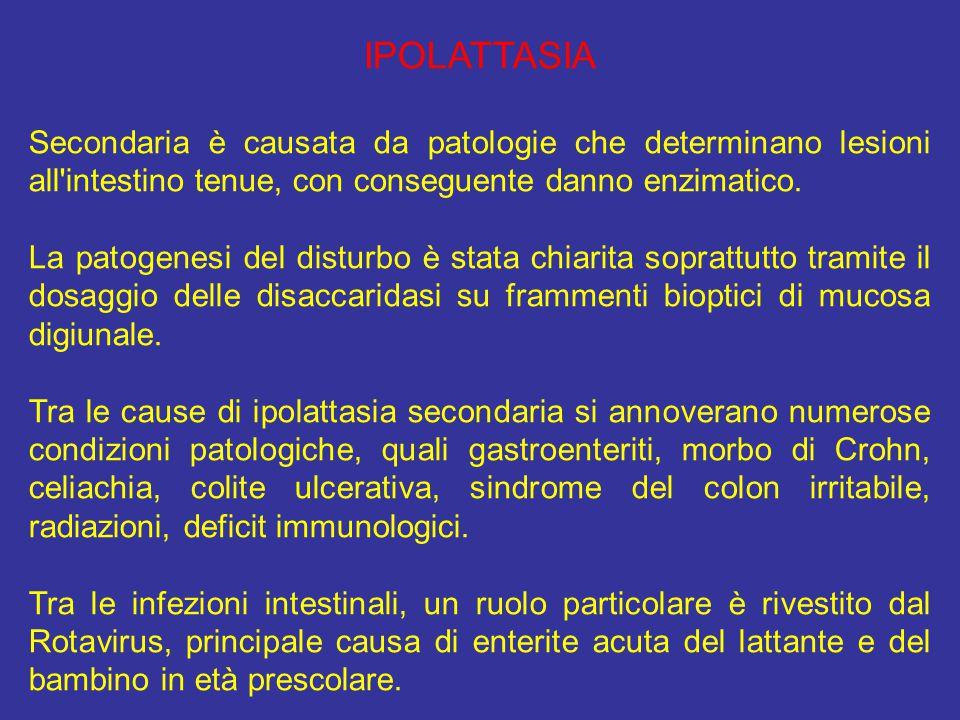 IPOLATTASIA Secondaria è causata da patologie che determinano lesioni all'intestino tenue, con conseguente danno enzimatico. La patogenesi del disturb