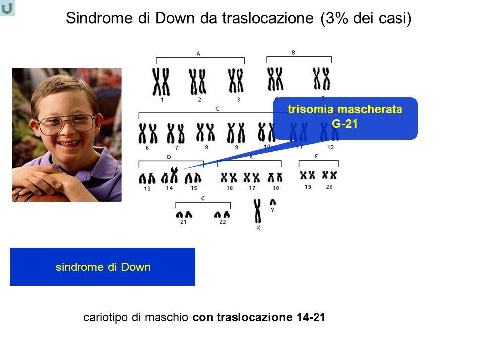Sindrome di Down da traslocazione (3% dei casi) cariotipo di maschio con traslocazione 14-21 sindrome di Down trisomia mascherata G-21