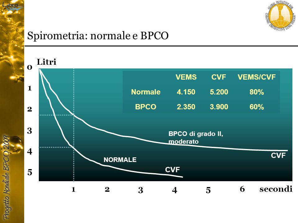 5 0 1 2 3 4 123456 CVF BPCO di grado II, moderato NORMALE secondi Litri VEMSCVFVEMS/CVF Normale4.1505.20080% BPCO2.3503.90060% Spirometria: normale e BPCO