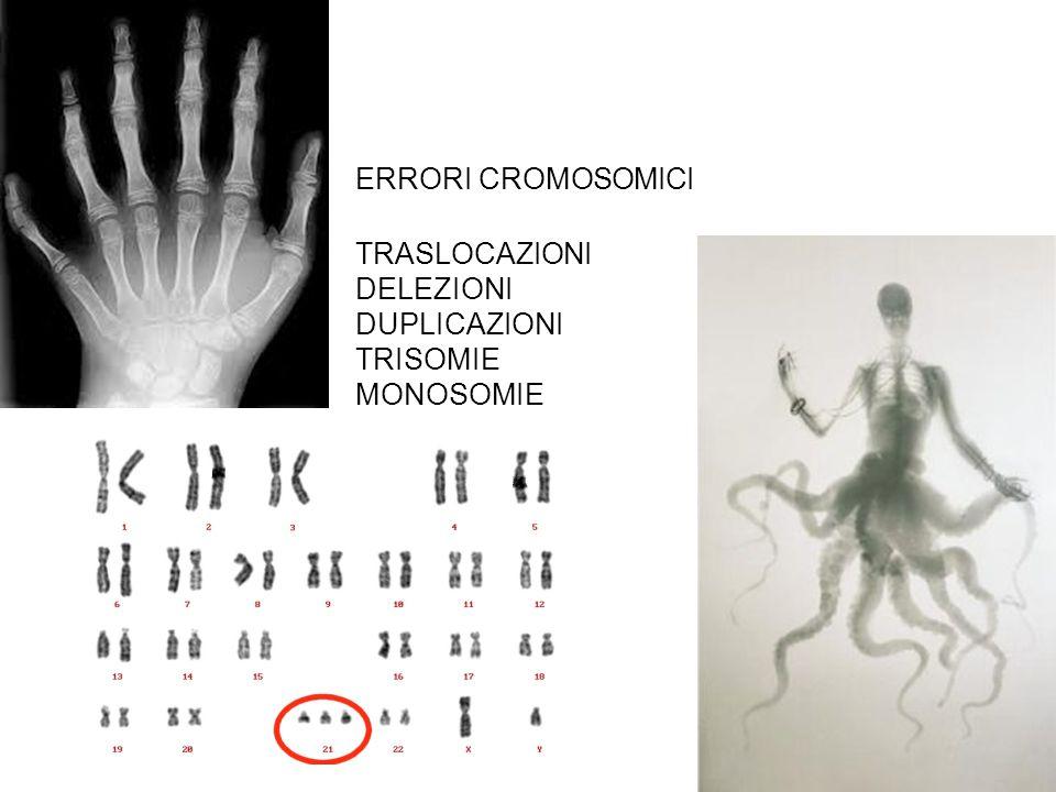 ERRORI CROMOSOMICI TRASLOCAZIONI DELEZIONI DUPLICAZIONI TRISOMIE MONOSOMIE